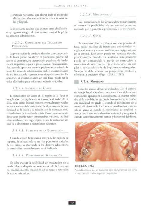 libro esta es lul libro protesis fija