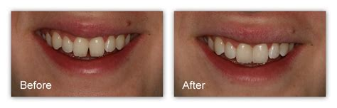 dr m hosner d d s tooth colored fillings gallery