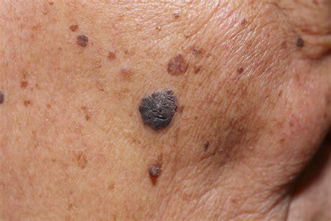 nei in testa wratten verwijderen huidoneffenheden dermaclinic