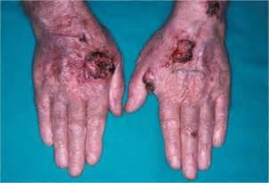 rayonnements ultra violets atlas de dermatologie