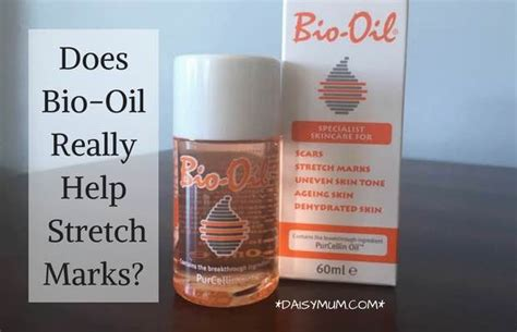 Bio Untuk Stretch Marks bio for pregnancy review does it really work daisymum