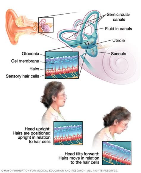 dizziness disease reference guide drugscom