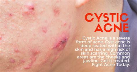 cystic acne treatment singapore apax medical