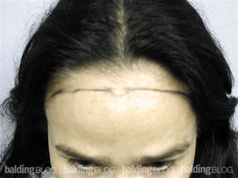 uneven hairline on forehead female hairline restoration after brow lift with photos