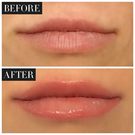 tattoo lips lighter monaco rejuvenation spaombre lips and lip tattoo monaco