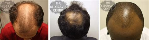 guide to hair loss conditions diagnose yourself guide to hair loss conditions diagnose yourself