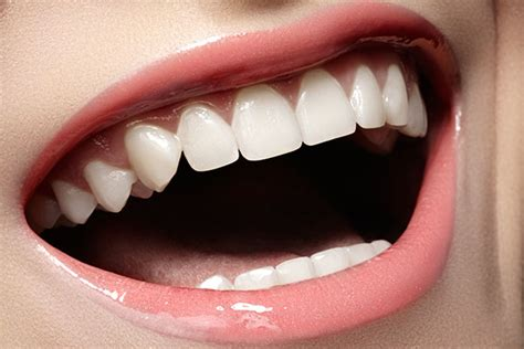 find the answer to can veneers fix crooked teeth