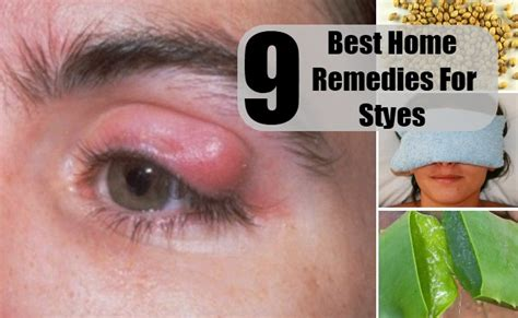 9 best home remedies for styes cure herbal