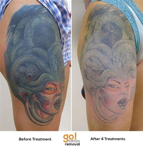 tattoo removal progress this has been a major project for us and we re beyond