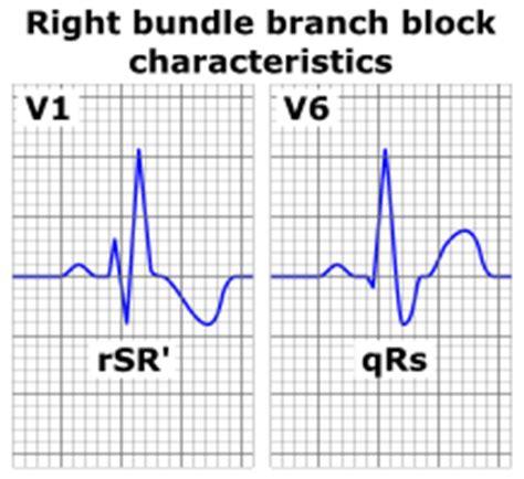 rsr pattern ecg meaning right bundle branch block wikipedia