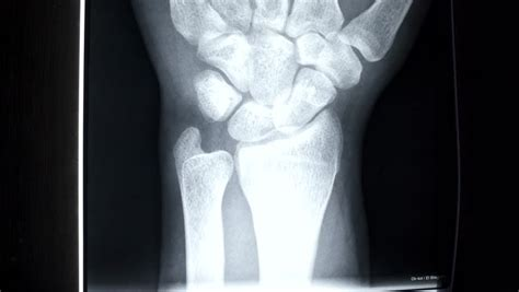 xss rays tutorial broken arm x ray stock footage video 3487232 shutterstock