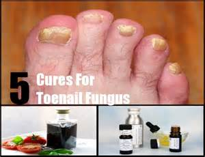 toenail fungus home remedies top 5 cures for toenail fungus how to treat