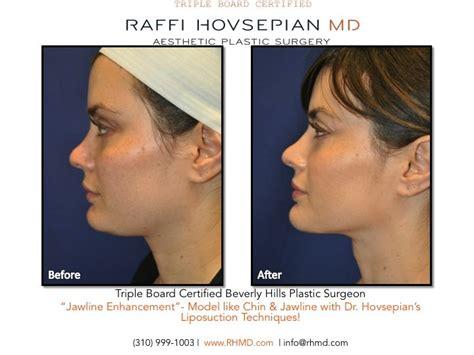 double chin tuck sew die besten 25 neck liposuction ideen auf pinterest nase