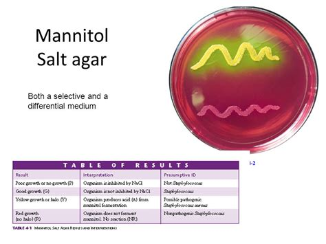 Agar Agar White 7 Gram selective and differential media ppt