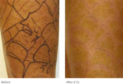 tattoo removal york pa removal before after photos removal
