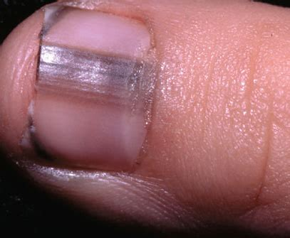dark line on fingernail dark lines on nails