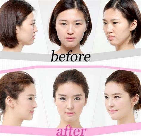 Asian Family Plastic Surgery Meme - cirug 237 a pl 225 stica coreana antes y despu 233 s taringa