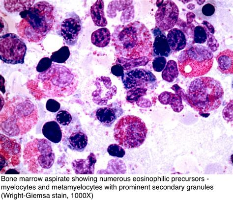 Myelodysplastic Pathology Outlines by Pathology Outlines Chronic Eosinophilic Leukemia Not Otherwise Specified Cel Nos