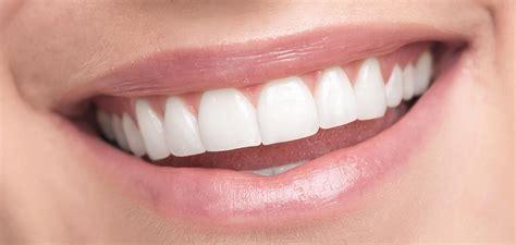 teeth whitening true  false  dental centre