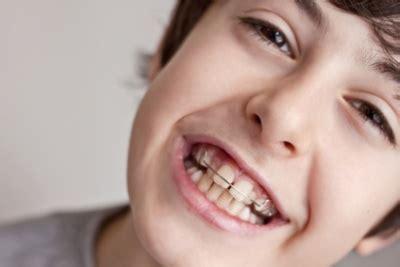 gestell zahnspange bionator funktion anwendung gebrauch g 252 nstig kaufen