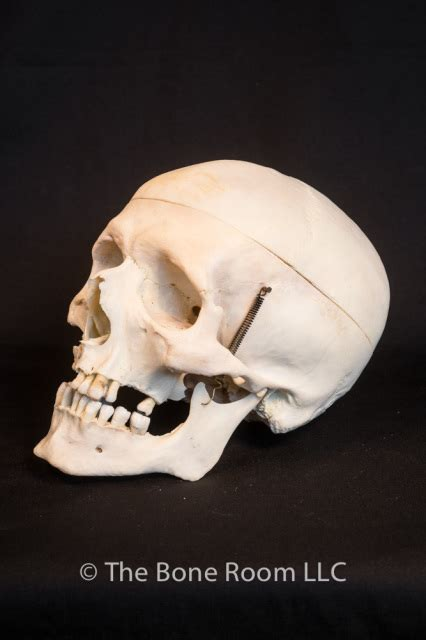 bone room pathological human skulls for sale the bone room