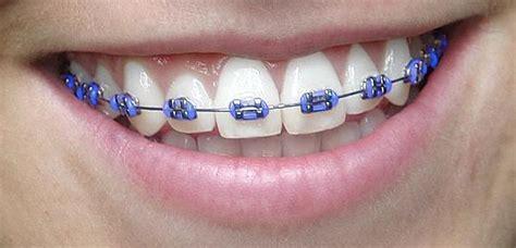 Bracket Behel Metal Sky Ortho 1000 images about teeth and braces on braces