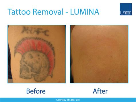 ipl laser tattoo removal lumina 24 revenue streams in one multi treatment