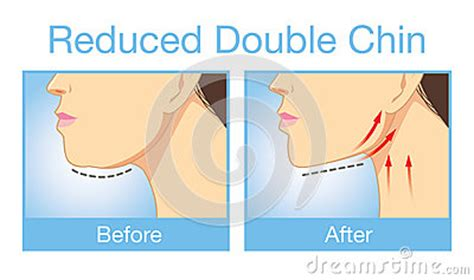 how to make a double chin look less noticable eith hair reduce a double chin stock vector image 58483293