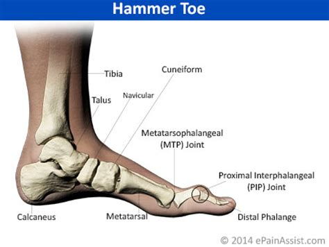 Jogger Claw Big foot its anatomical distribution causes of foot