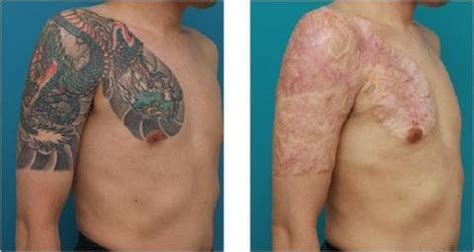 laser tattoo removal vs removal creams fade to blank the dangers and risks of non laser tattoo removal methods