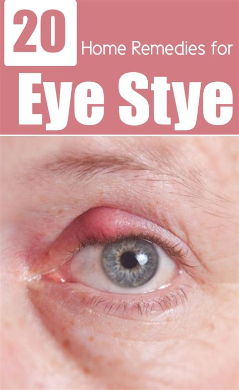 12 best stye on eye images on stye on eye