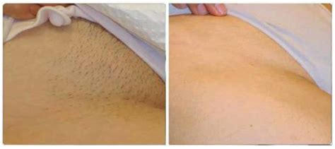 tattoo pictures on private parts shaving and waxing the hair off your private parts has