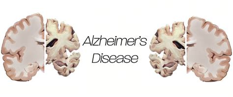 Alzheimer Detox by Alzheimer S Disease Guide Cleanse Review