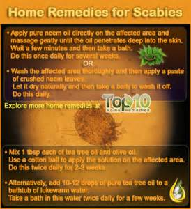 how to treat scabies at home home remedies for scabies top 10 home remedies