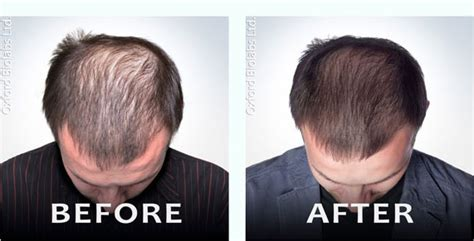 1 month after using ovation hair cell therapy and the scalp design laser hair cap