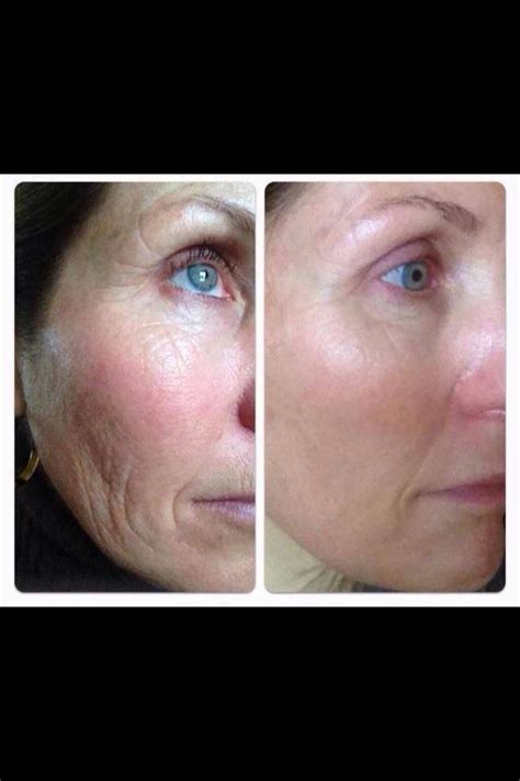 how do i get rid of laugh lines with a hairstyle before and after picture customer using nerium get rid