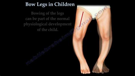 bow legged bow legs in children everything you need to dr nabil ebraheim