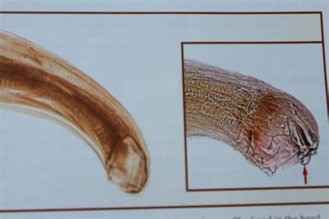 Larvae In Human Stool by Human Hookworm Brazil Pdf Ppt Reports