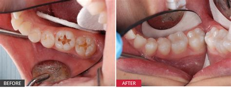 case study deep fissures  extensive tooth decay