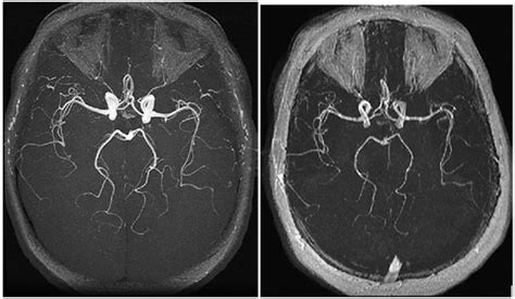 visual representation of the difference between a 3 0t mri
