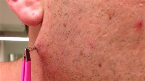 women with longest pubic hairs pulling out an ingrown pubic hair man pulls world s
