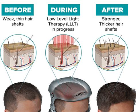 does led light therapy work does led light therapy work for hair growth iron blog