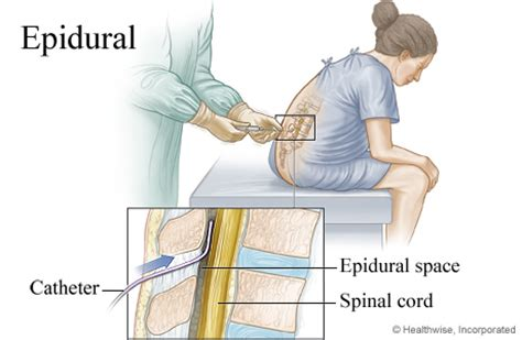 types of anesthesia for c section anesthesia epidural anesthesia extradural anesthesia