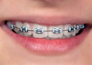 braces colors coloured braces langley orthodontics bc