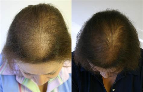 before and after photos alopecia antrogenetic women female hair loss patient 2 limmer hair transplant center