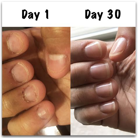 how to to stop biting how to stop biting nails angela s results nailcarehq