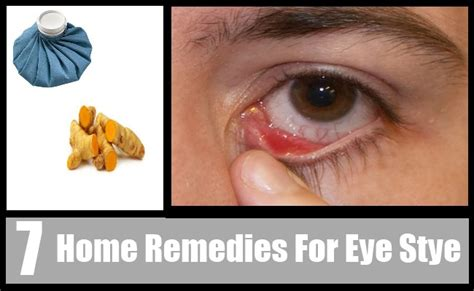 7 home remedies for eye stye how to get rid of search