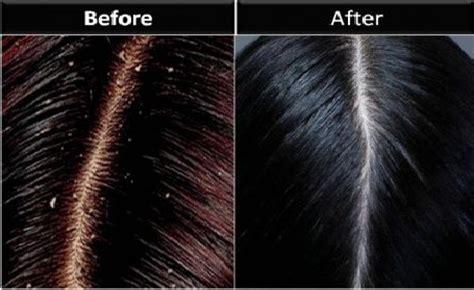 Shiseido Hair Scalp Essence 1 Dandruff Care 6x8 Ml weekend special new award winner shiseido professional