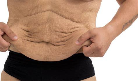 the ways to tighten abdominal skin fitexpert