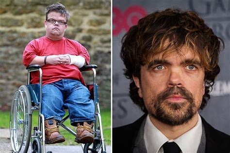 actor midget game of thrones dwarf made famous by game of thrones star dies aged 42